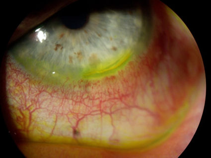 partially dislodged LASIK flap