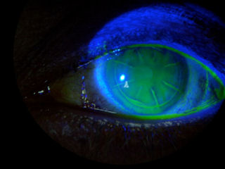 post-RK-post-LASIK-interface-staining