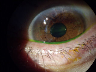 botched RK followed by off-center corneal transplant