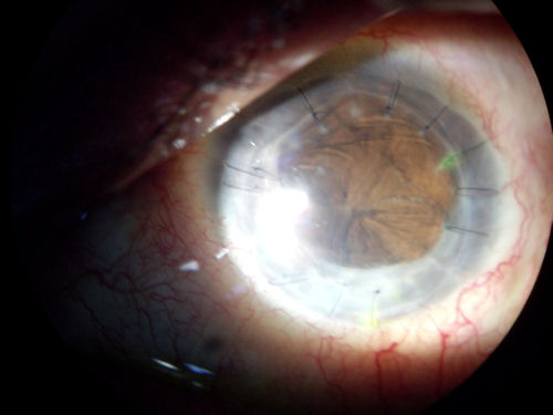 The Lasik Vision Institute Corneal Transplant