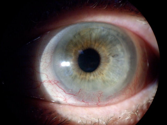 LASIK risks LASIK side effects LASIK problems and complications