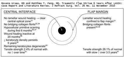 incomplete healing of the LASIK flap