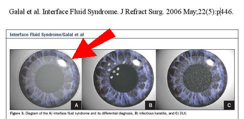 Interface Fluid Syndrome After LASIK: LASIK Complications